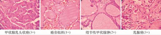 甲状腺乳头状癌,    癌旁及甲状腺肿组织中tsk15的表达       检查